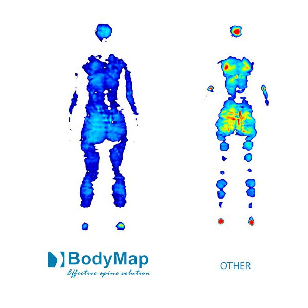 akces-med-body-map-sold-by-sitwell-technologies-e
